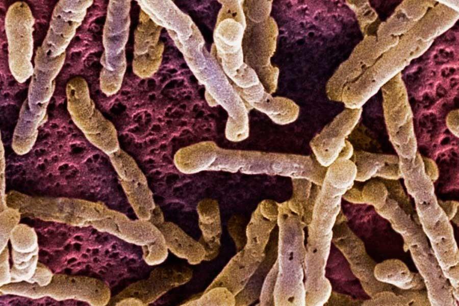 micosis en la piel y aprende a combatirlo