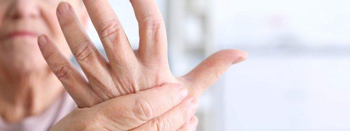 Todo lo que debes saber de la Artritis