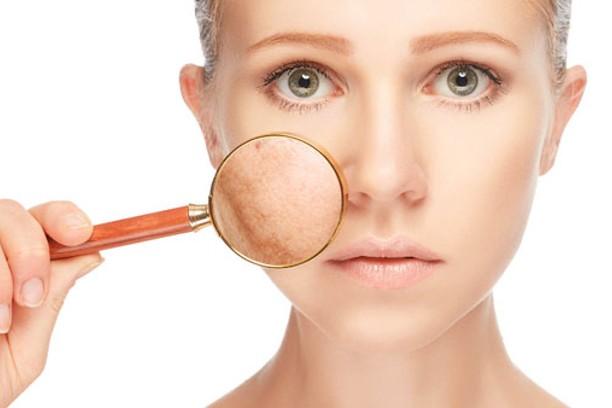 Minimiza las manchas del rostro con remedios caseros