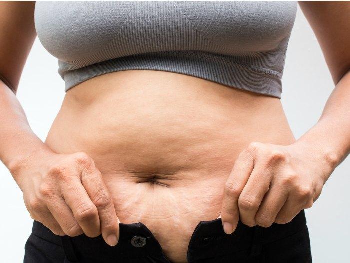 La repercusión de la nutrición en el desarrollo de la celulitis