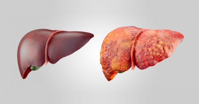 remedios naturales para eliminar la grasa en el hígado