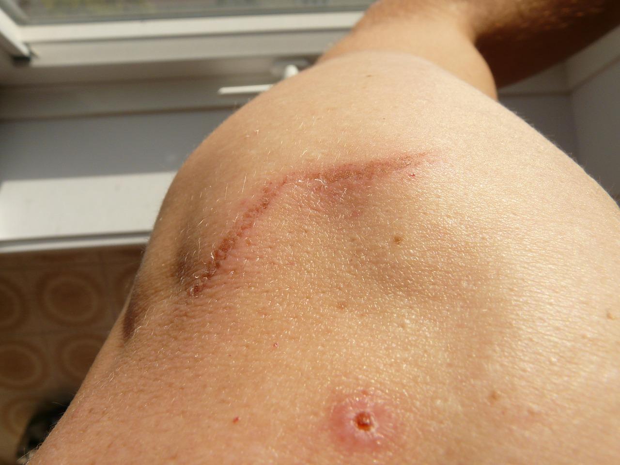 Las cicatrices de cualquier tipo tienen ángulos completamente desagradables muchas veces