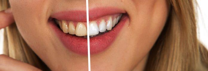 Estos hábitos son los peores para tus dientes